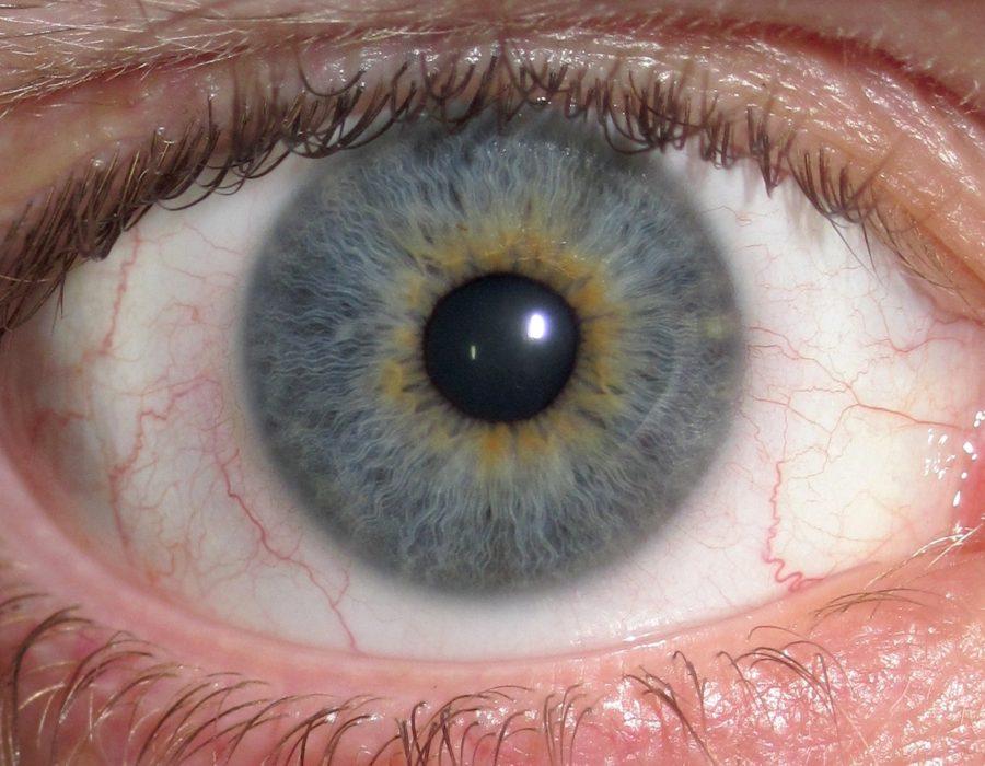 Eye_Central_Heterochromia_crop_and_lighter