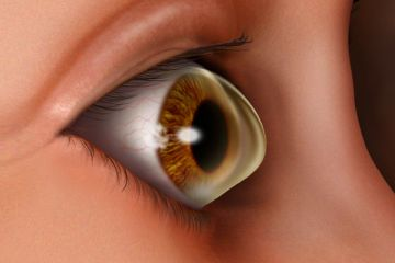 keratoconus-co0157-09399215