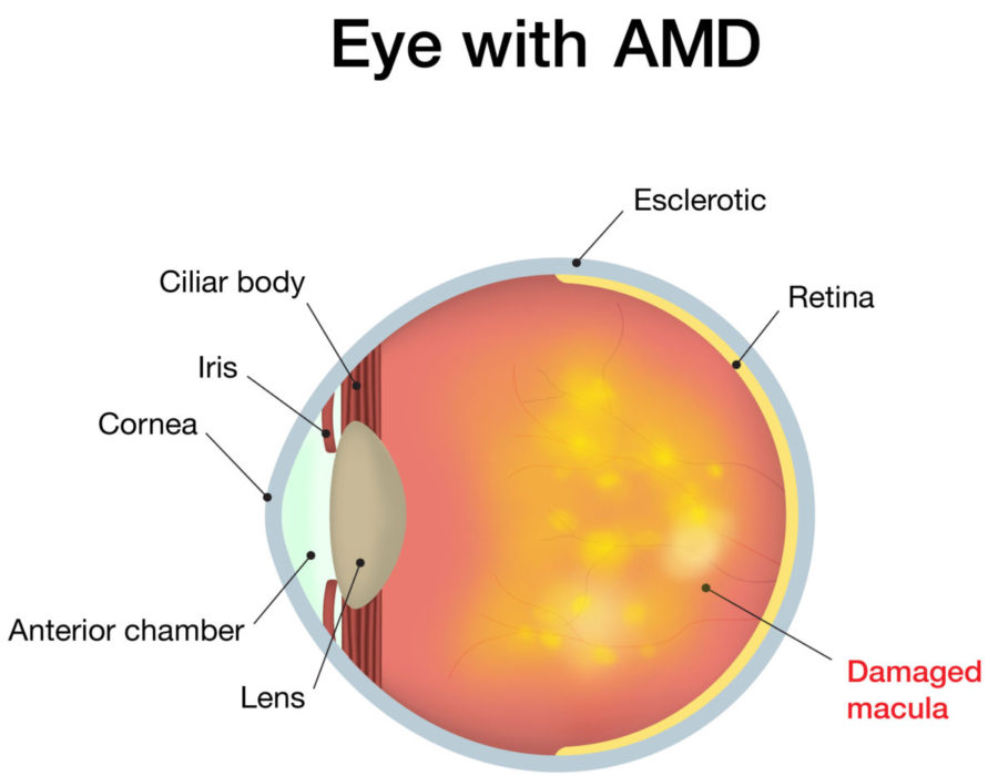 Amd Cheshire Eye Clinic
