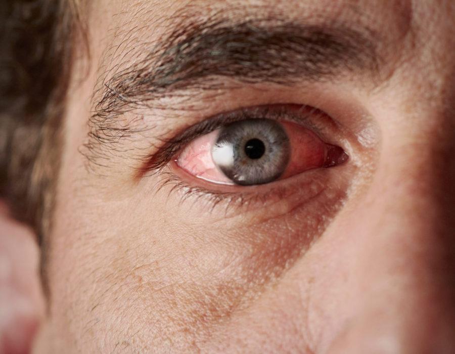 corneal-disease